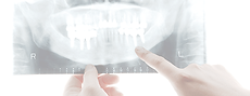 歯のレントゲン