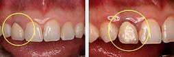 歯肉炎の歯と歯茎