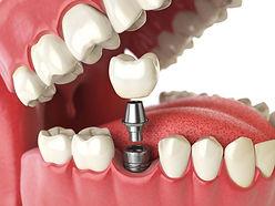 インプラントをしている歯のイラスト