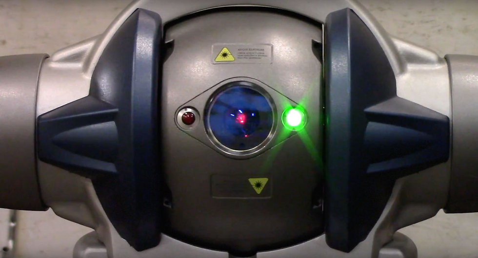 Laser Inspection Technical Tooling