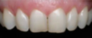 bleaching, aesthetic dentistry, blanchiment, esthétique dentaire, tâche, white spot, broken tooth, composite