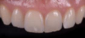 bleaching, aesthetic dentistry, blanchiment, esthétique dentaire, tâche, white spot, broken tooth, composite, ceramic veneer, ceramic