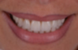 bleaching, aesthetic dentistry, blanchiment, esthétique dentaire, tâche, white spot, broken tooth, composite, ceramic veneer, ceramic