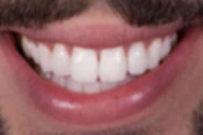 bleaching, aesthetic dentistry, blanchiment, esthétique dentaire, tâche, white spot