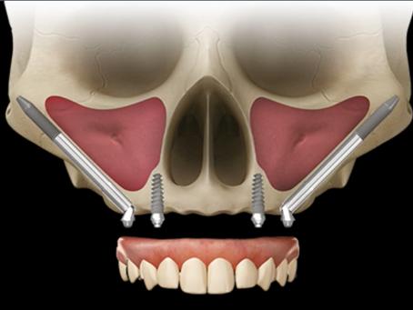 O que é implante zigomático?