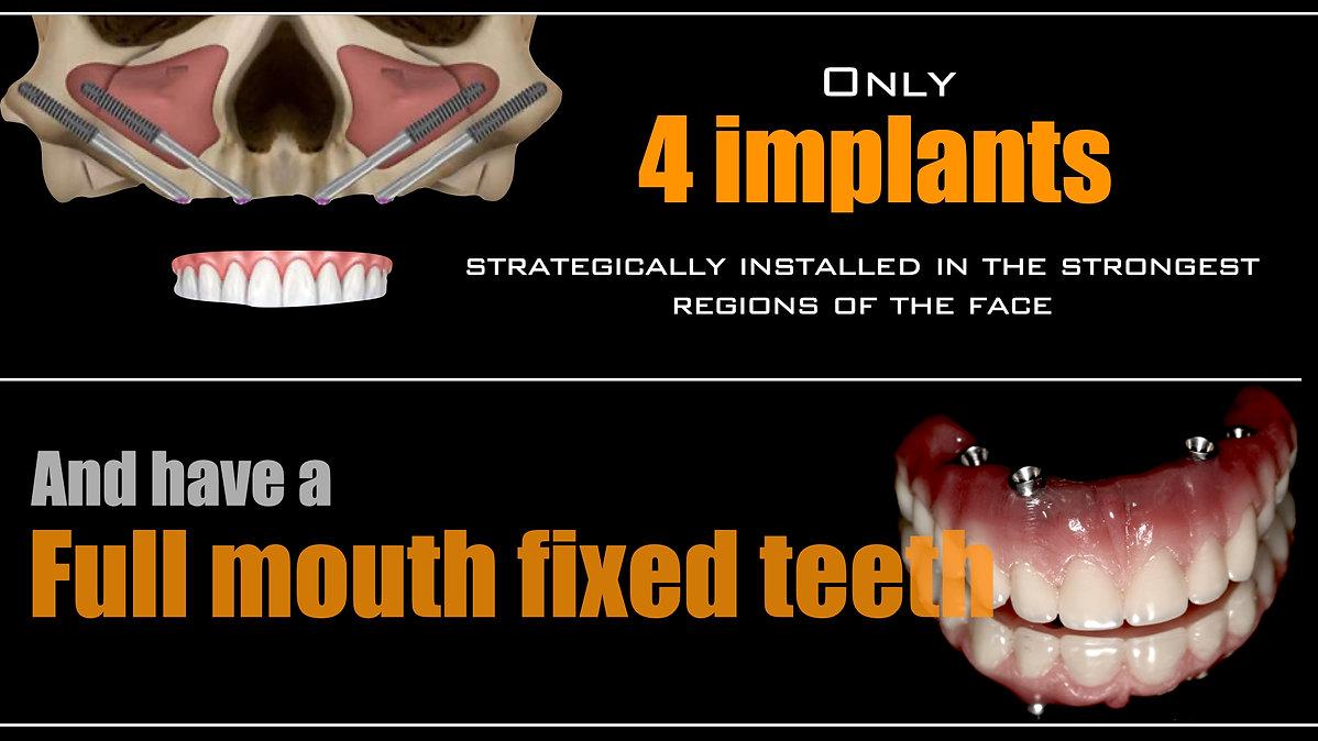 allon4 implants.jpeg