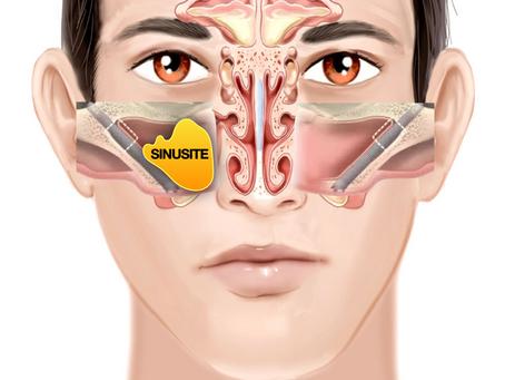 Implante Zigomático Causa Sinusite?