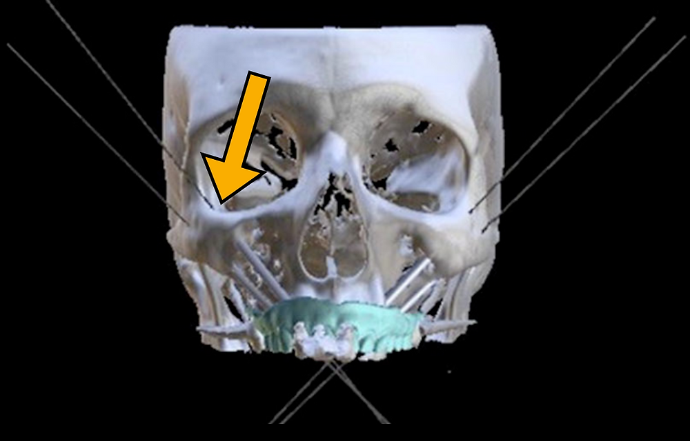 zygomatic implant 3D skull