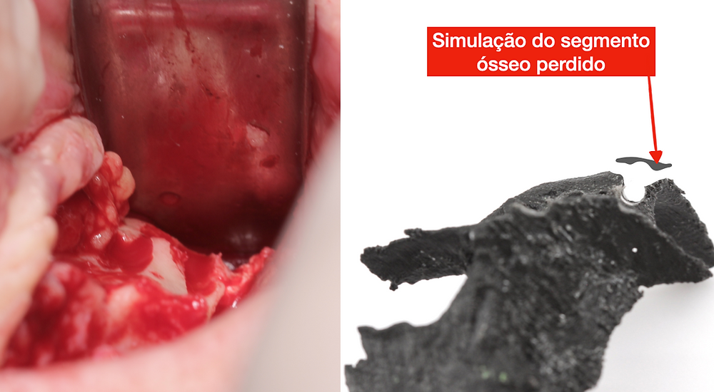 fratura zigoma implante zigomatico
