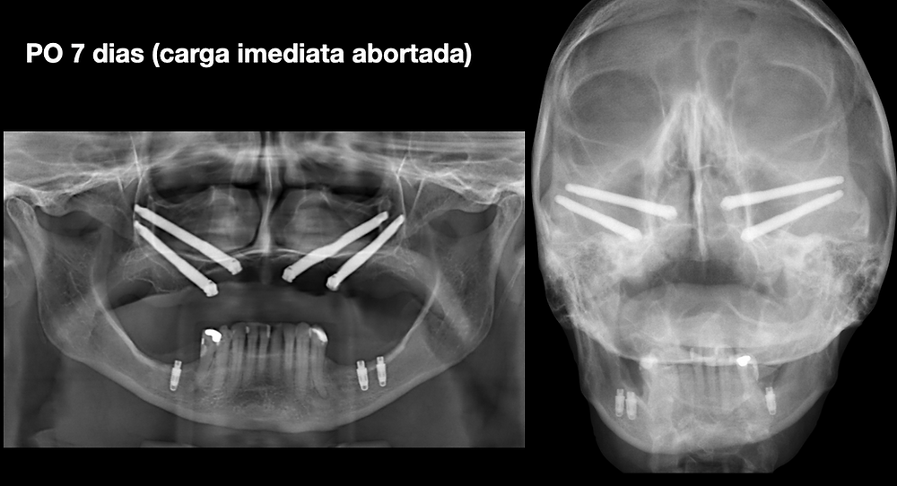 rx implantes zigomáticos