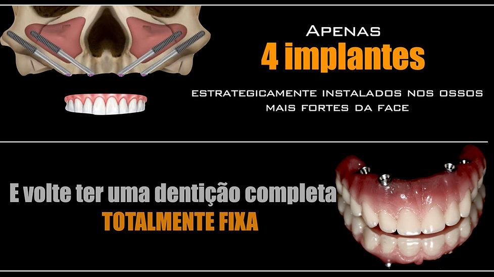 implante zigomatico brasil.jpeg