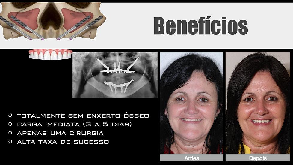 dentes fixos implante zigomatico.jpeg