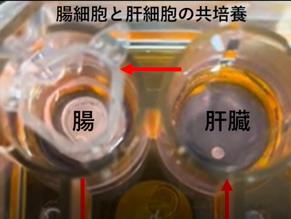 腸管デバイスについて動画を公開しました/Youtube updated for intestinal devices