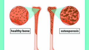 Ayurvedic Management Of Osteoporosis