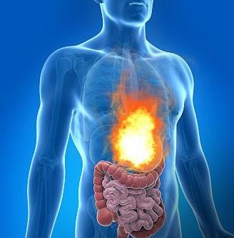 Ayurvedic Treatment Of Acid Reflux