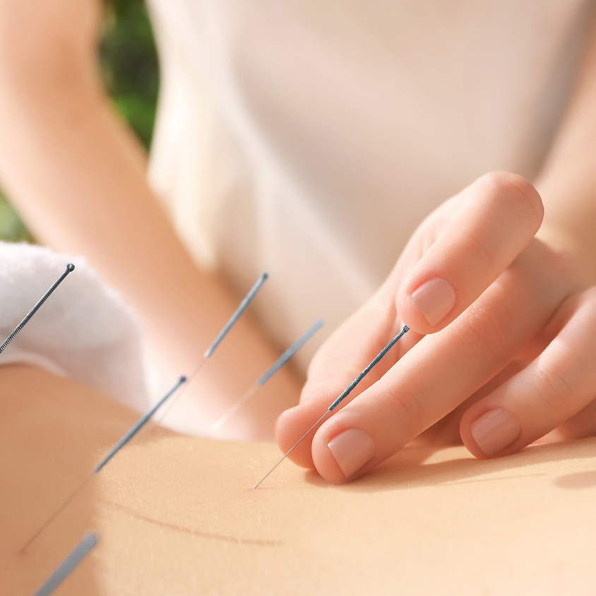 Pin-pointing pain and other common ailments with acupuncture and Chinese medicine