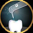 Restorative Dentistry LiteTouch laser.pn