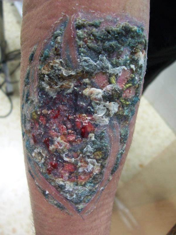 Tattoo Infections - How to spot them and treat
