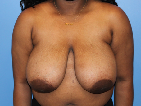 Before and After | Breast Reduction – 003