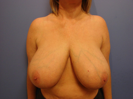 Before and After | Breast Reduction – 002