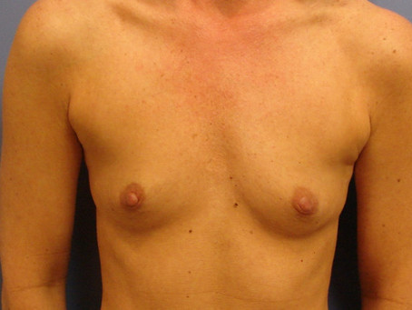 Before and After | Breast Augmentation – 001