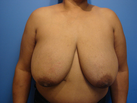 Before and After | Breast Reduction – 001