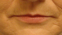 Before and After | Thin Lips/Fat Graft – 001