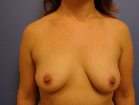 Before and After | Breast Augmentation – 002