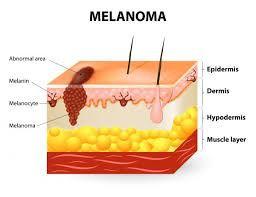 melanoma 3.jpg