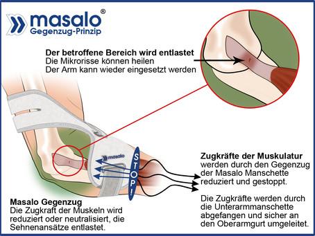 Genial: Masalo-Manschette bei Tennisarm