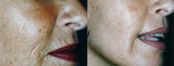 dermaroller-wrinkles-3-590x225