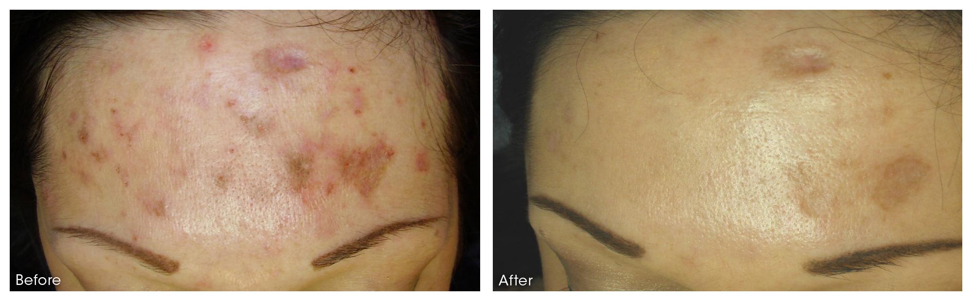 dermaroller-scar-5-PRINT