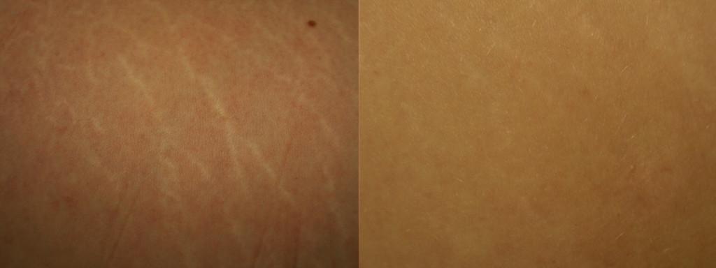 dermaroller-stretch-marks-2-1024x384