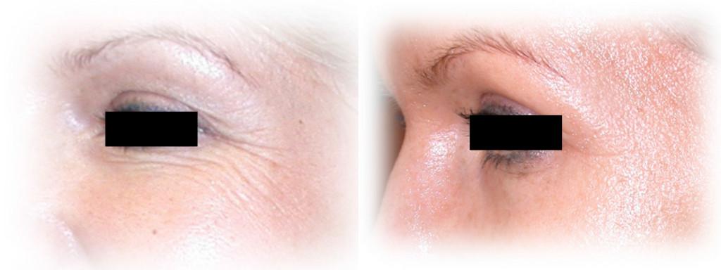 dermaroller-wrinkles-2b-1024x384