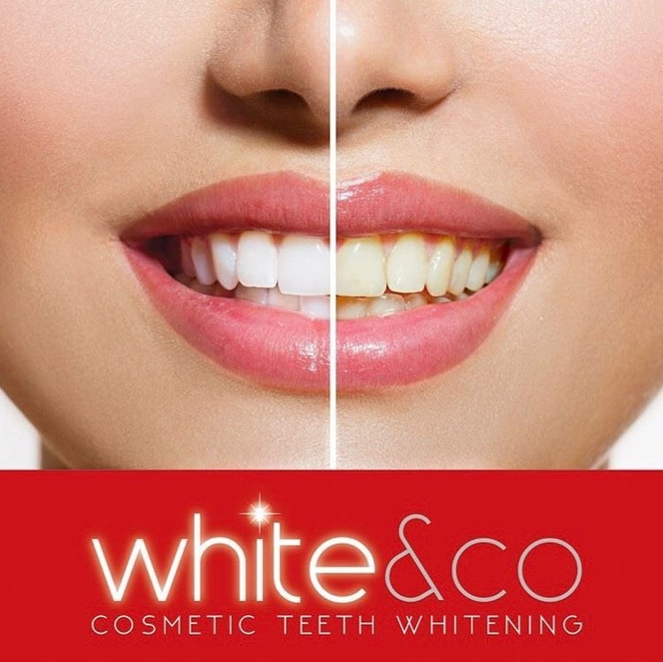 Non-Peroxide Teeth Whitening