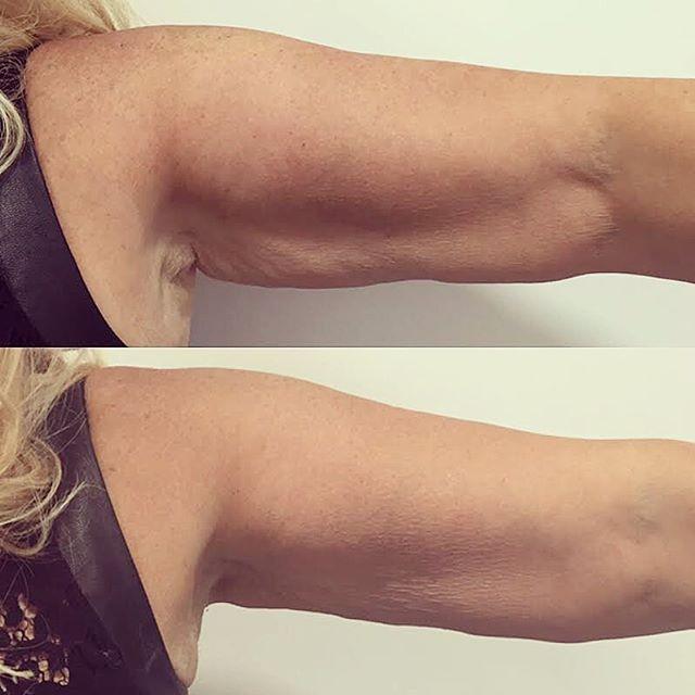 Lipofreeze Results