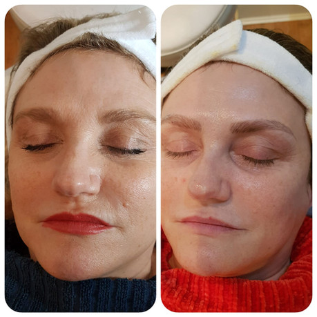 Acupuncture Facial Results