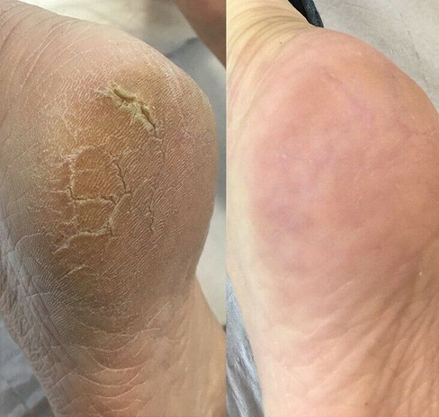 Callus Peel Results