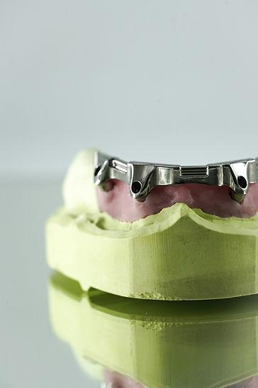 ZahnStyle   Dentallabor - Leistungen Implantate