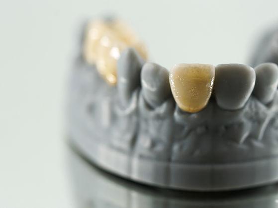 ZahnStyle   Dentallabor - Leistungen Veneers
