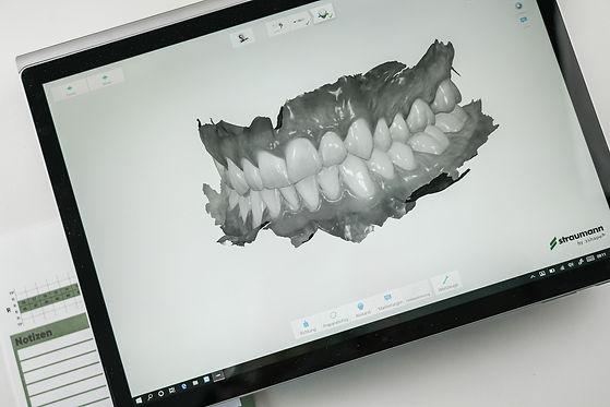 ZahnStyle   Dentallabor - Zahntechnik Intraoralscan