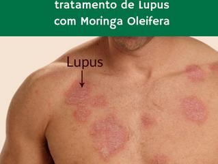 Lupus tratado com Moringa Oleifera