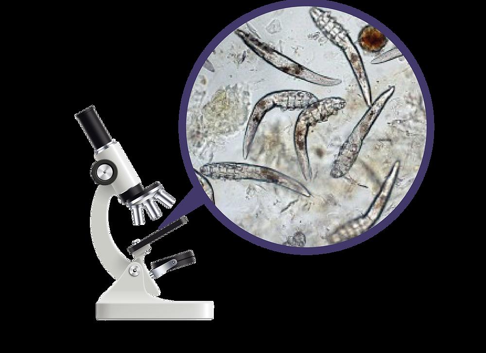 Microscopio con primer plano de bacterias