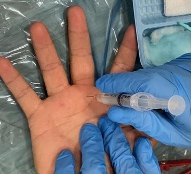 Trigger finger injection.jpg