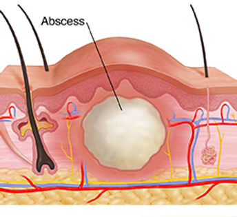 cross-section-through-skin-layers-showing-abscess-403346.jpg