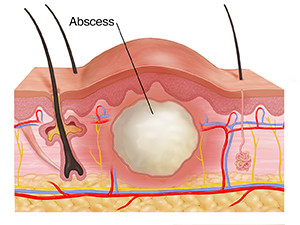 My doctor just told me I have a skin abscess? What is going to happen now?