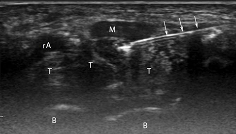 Ultrasound Scan showing the Needle injecting