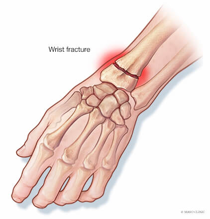 Wrist Fracture described by Mayo Clinic