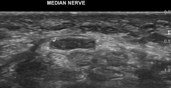 Ultrasound of the Carpal Tunnel showing the Median Nerve