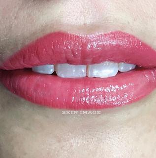 MC lips front.jpeg